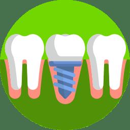 Ideal para quem perdeu um ou vários dentes, atualmente os implantes de carga imediata são uma tendência da odontologia por causa dos avanços científicos na área, que busca aumentar a saúde, a segurança e o conforto na região bucal.